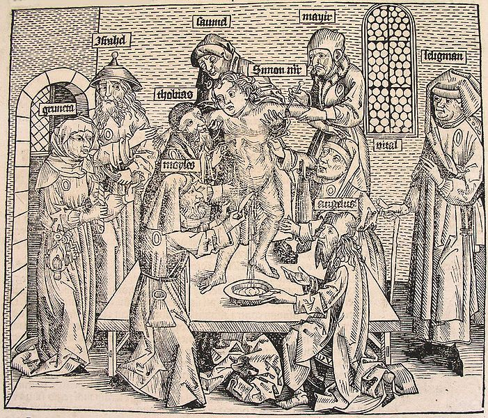 Tridenti Simon véráldozata. Fametszet. Forrás: Schedel: Weltchronik, 1493.
